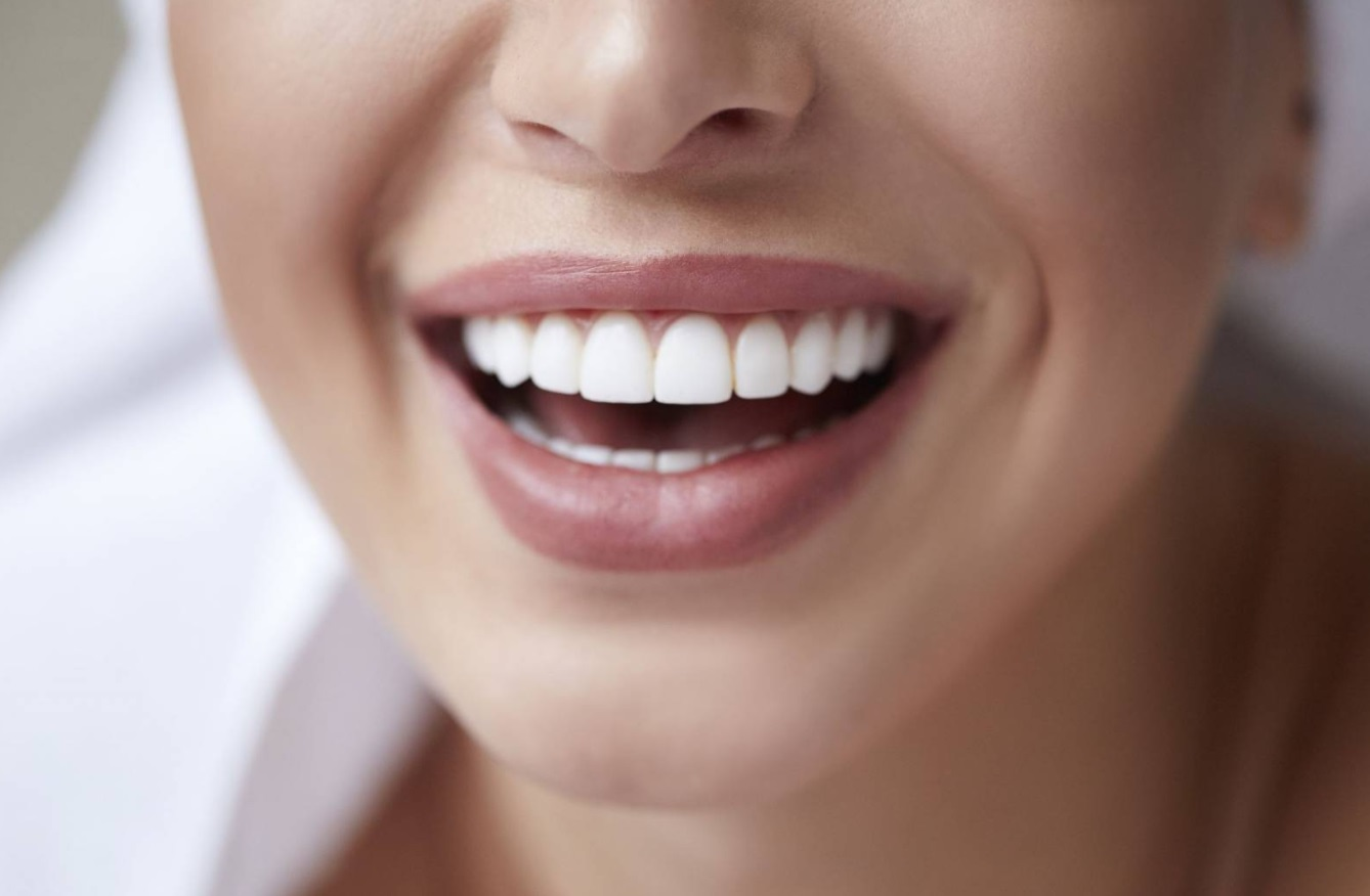 Dents blanches femme